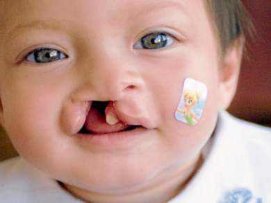 Help a child to smile in Dubai